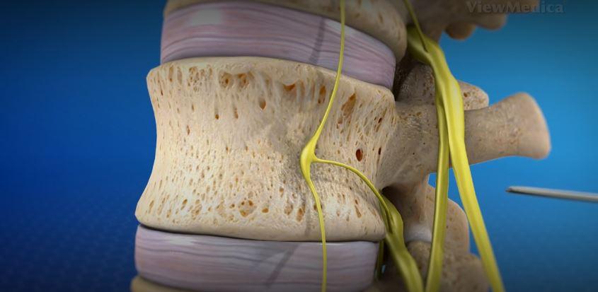 Infiltration foraminale pour soulager la douleur de l'hernie discale