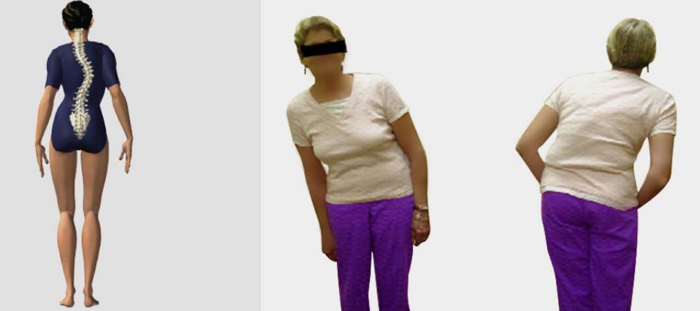 Scoliose de l'adulte : ce qu'il faut savoir