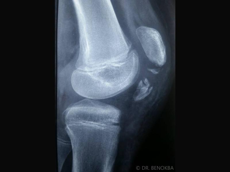 Fracture avulsion de la tubérosité tibiale antérieure chez un enfant