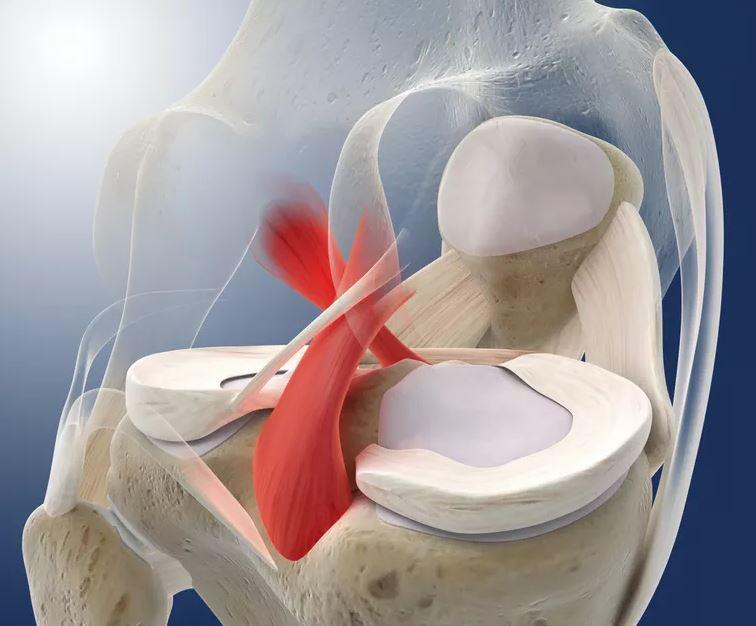 Genou : Rupture du ligament croisé postérieur