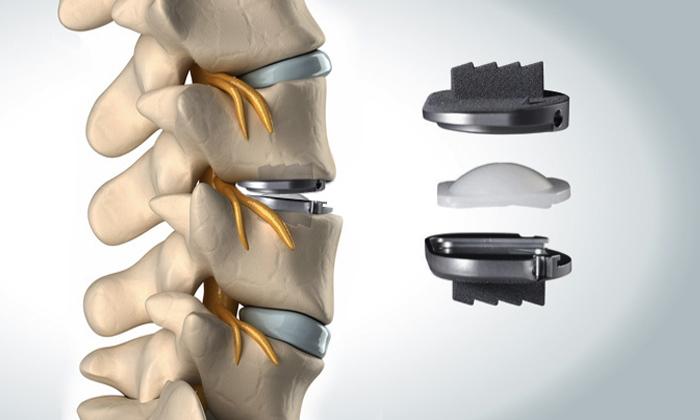 La prothèse discale