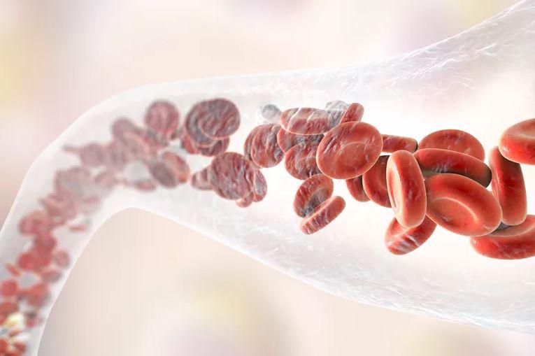L'aspirine, pourra-t-il remplacer les anticoagulants après la pose d'une prothèse du genou ?