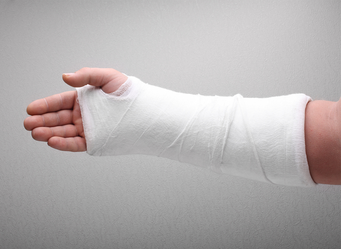Les règles du traitement orthopédique d'une fracture distale du radius
