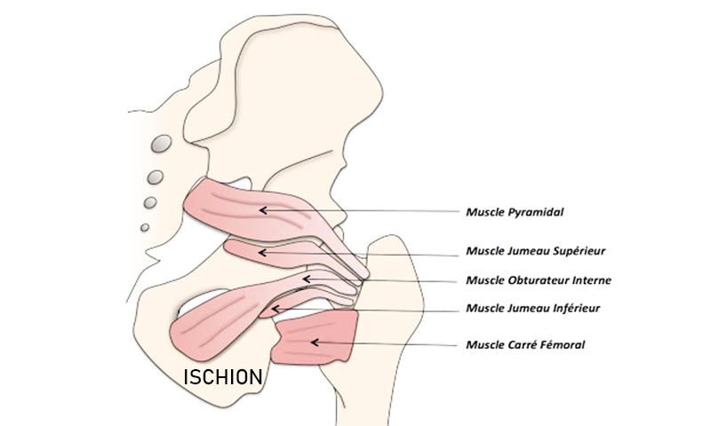 Conflit ischiofémoral : une pathologie rare et méconnue